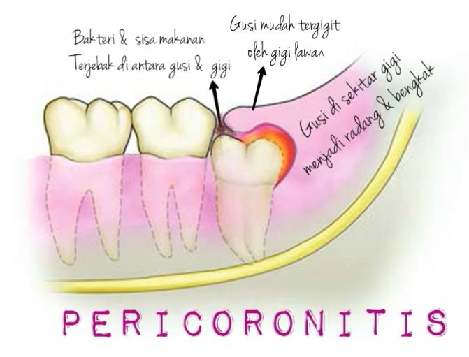 wpid-pericoronitis-illustrations-.jpg.jpeg