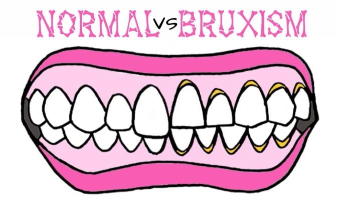 Bruxism: Mengasah Gigi Pada Saat Tidur