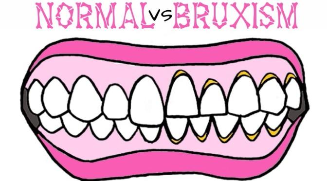DRGNITA: Bruxism, Mengasah Gigi Pada Saat Tidur